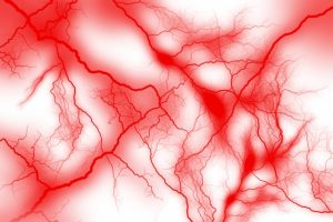 生活習慣病も原因になる脳血管性認知症